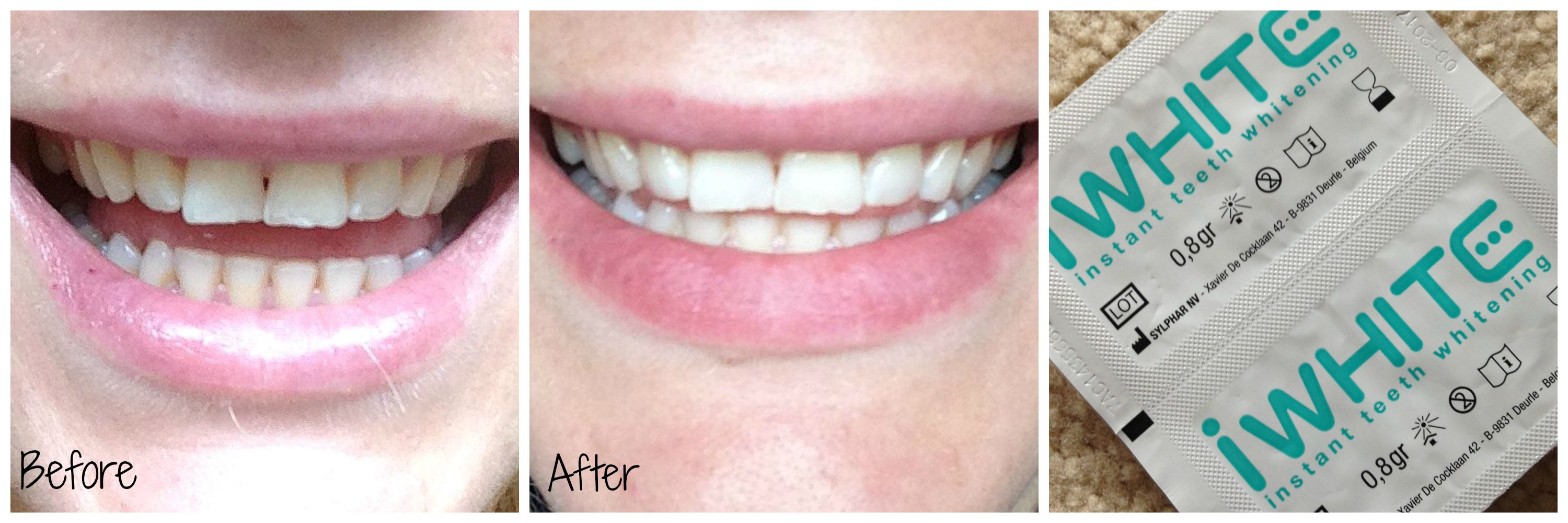 iWhite2 Instant Teeth Whitening | Review