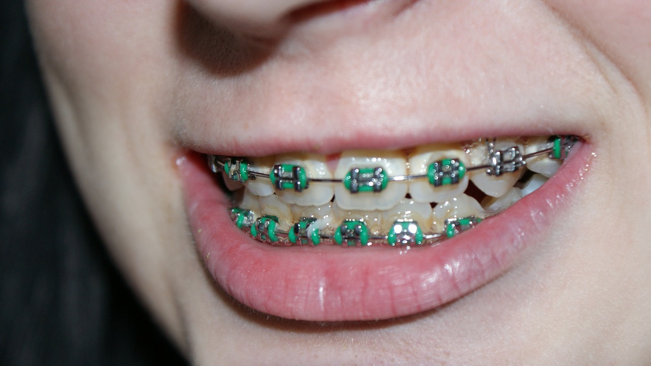All You Need To Know About Teeth Braces
